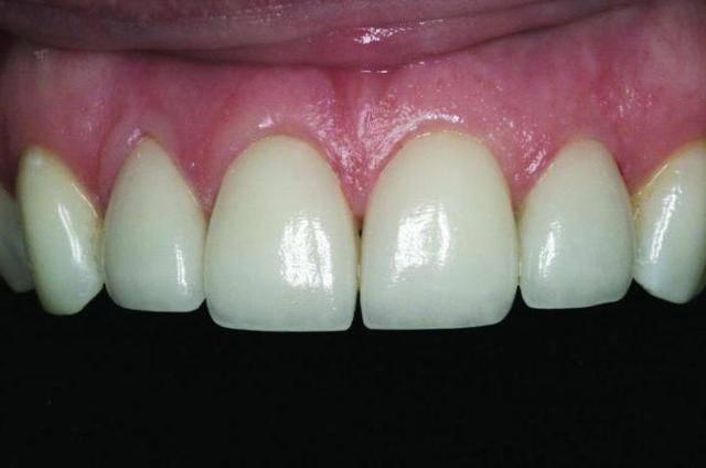 Чем опасна зубная гранулема, что это такое, каковы симптомы заболевания и как его вылечить в домашних условиях?