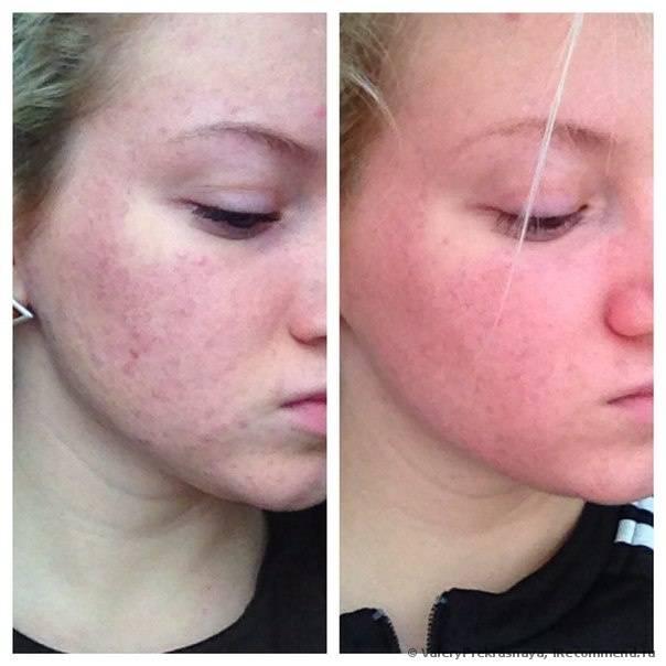 Полисорбовая маска для лица прекрасно очищает кожу