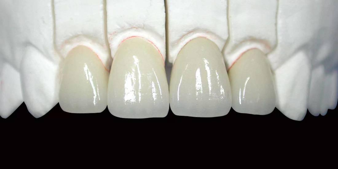 Какие коронки лучше ставить на зубной имплант: изготовление и установка циркониевых и металлокерамических протезов
