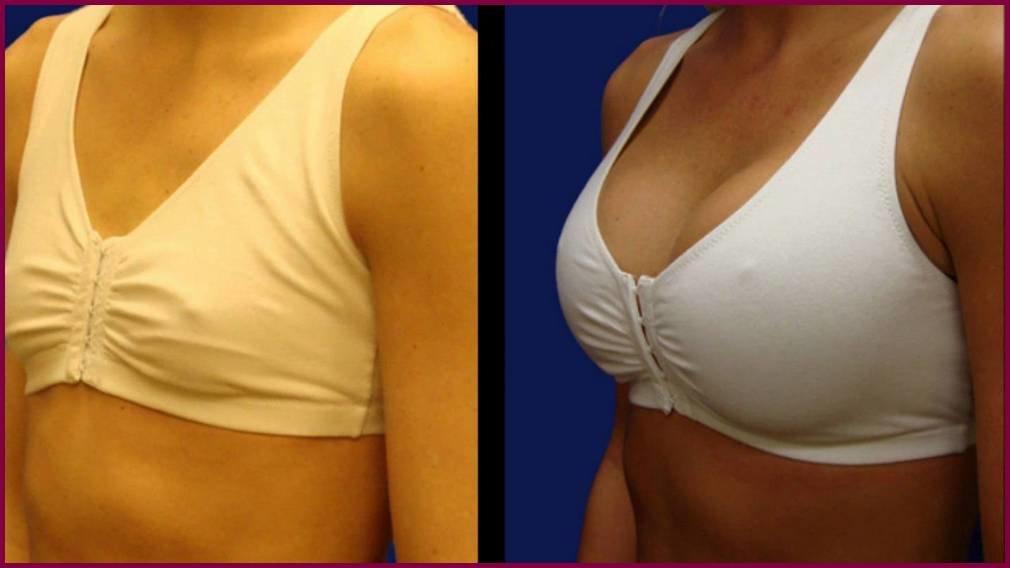 Повторная маммопластика - операция, осложнения, риплинг