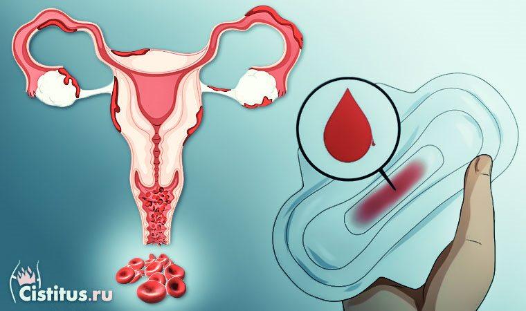 Месячные при миоме матки – свойственны ли миоме задержки?