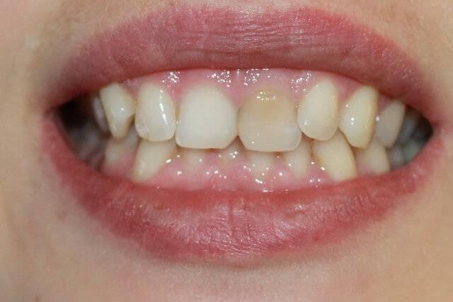 Как отбелить мертвый зуб в домашних условиях