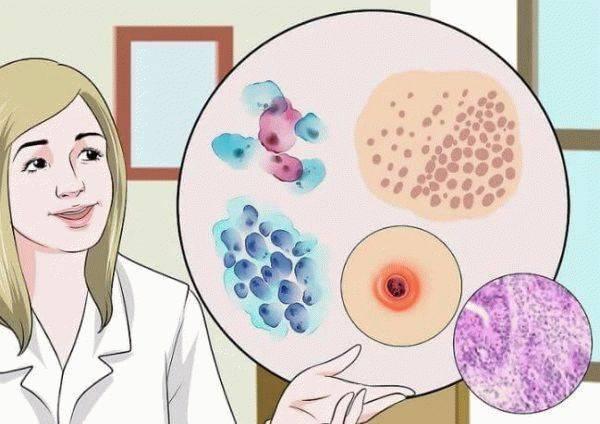 Причины появления кровянистых выделений после гинекологического осмотра при беременности