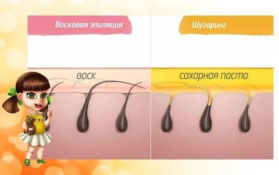Особенности ухода за кожей после лазерной эпиляции, устранение неприятностей после процедуры