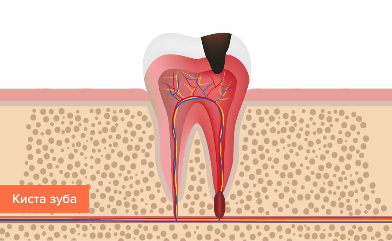 Опасности радикулярной кисты зуба и методы ее лечения