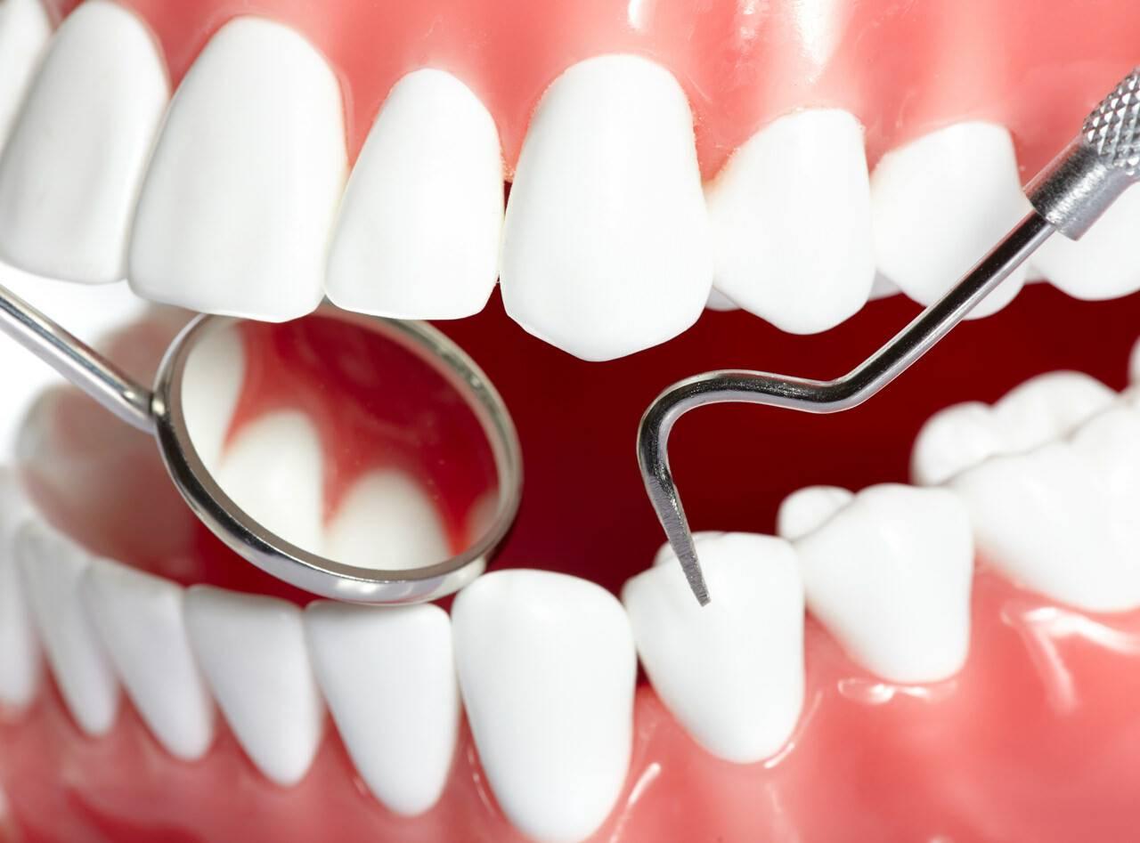 Что делать, если кровоточат десны и появляется неприятный запах изо рта даже после чистки зубов: причины и лечение