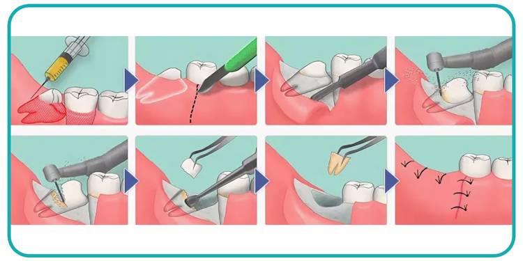 Как проводится операция по сложному удалению зуба?