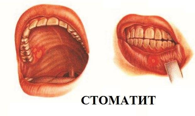 Симптомы и лечение аллергического стоматита у детей и взрослых, отзывы