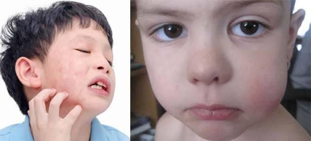 У ребенка болит щека с внутренней стороны, ребенок жалуется на боль в щеке.