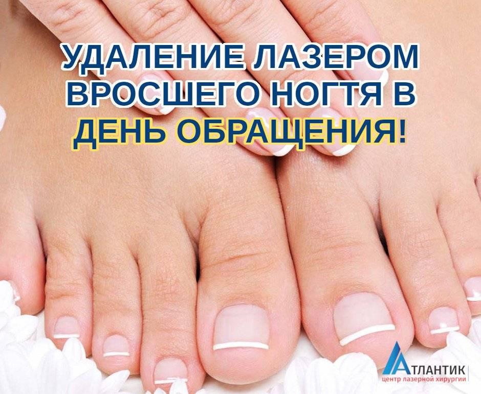 Лазерная коррекция вросшего ногтя: преимущества и недостатки лечения лазером