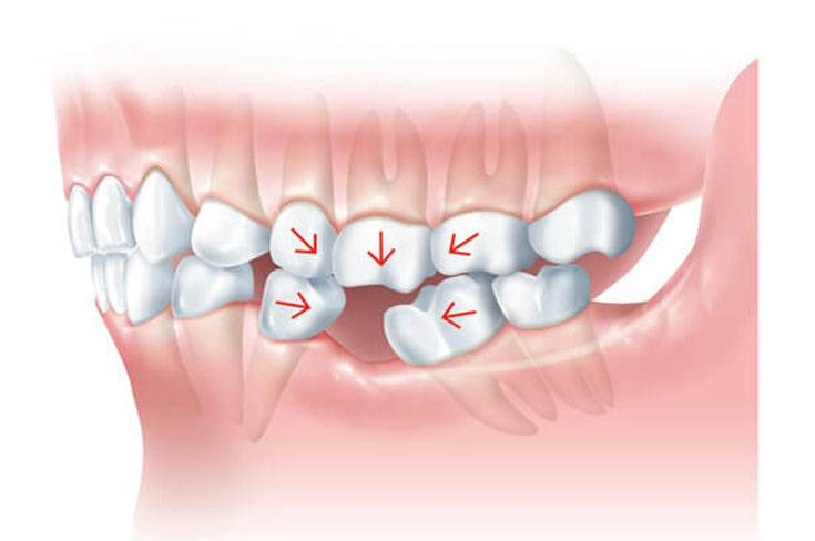 Влияние потери зубов на организм человека