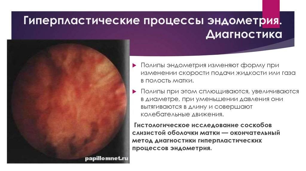 Лечение гиперплазии эндометрия — причины и признаки патологии
