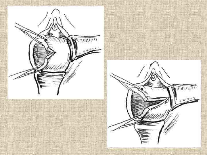 Ампутация шейки матки — операция, проводимая при неэффективности консервативного лечения