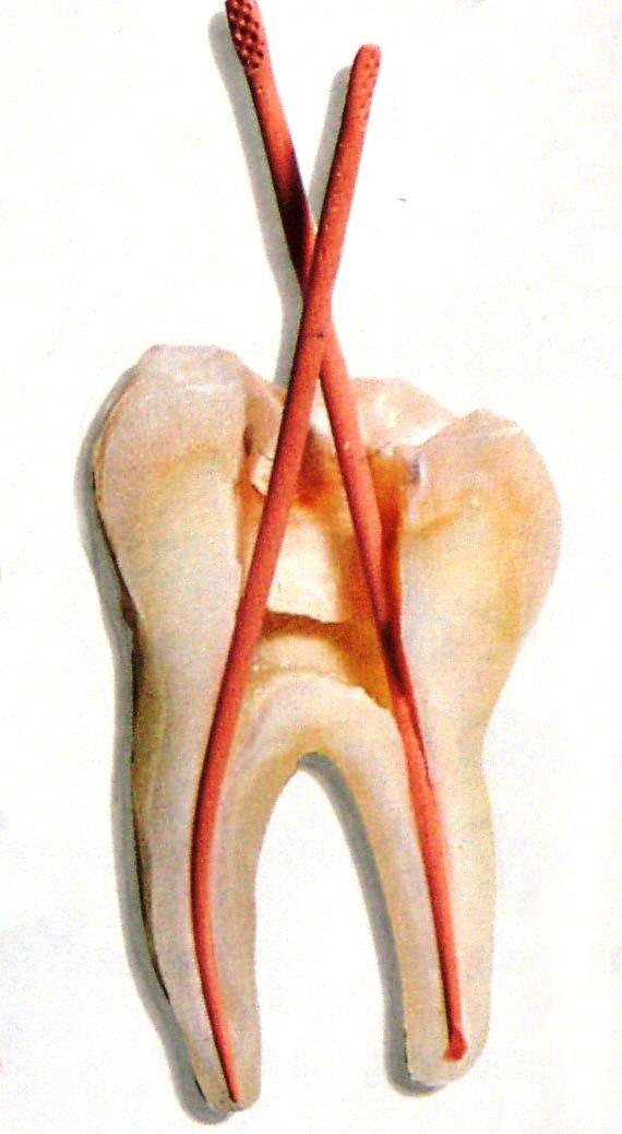 Пломбирование корневых каналов с использованием системы «термафил»