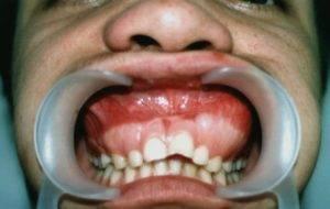 Рак челюстей