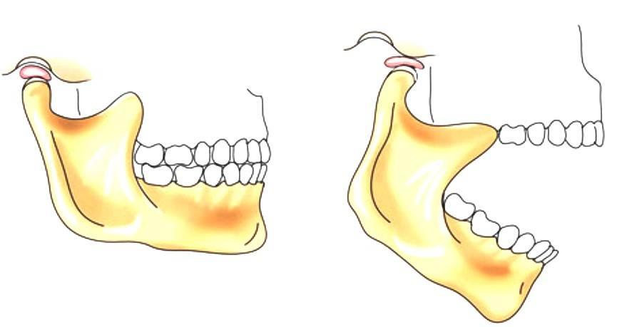 Щелкает челюсть при открытии рта – причины и лечение