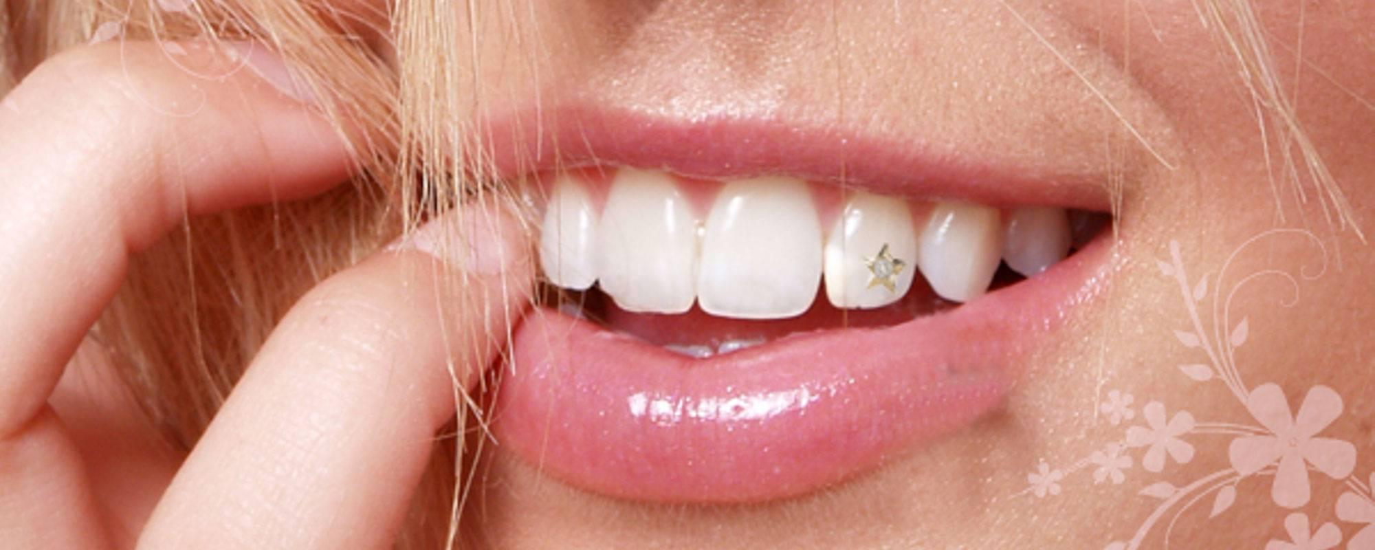 Скайсы и стразы на зубы