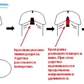Методики подрезания короткой уздечки крайней плоти