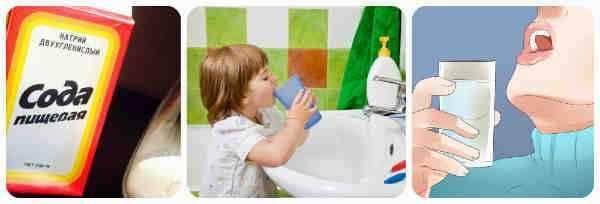 Применение соды в уходе за грудничком, а также лечение при помощи соды молочницы у новорожденного