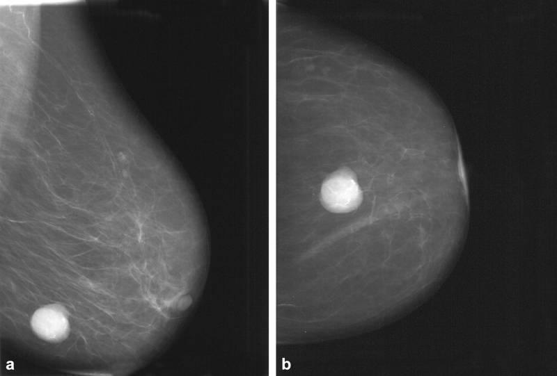 О фибромиоме молочной железы компетентно