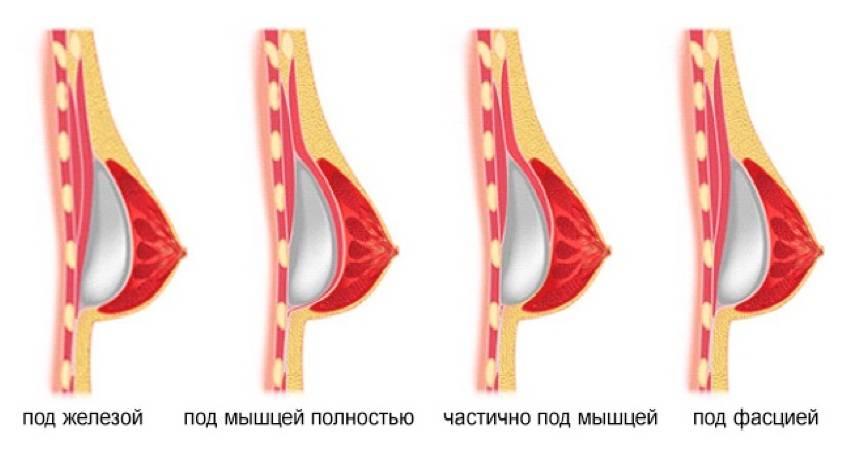 Польза и вред увеличения груди своим жиром