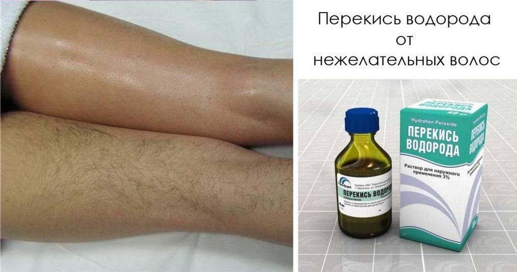 Маскируем волоски на теле с помощью гидроперита