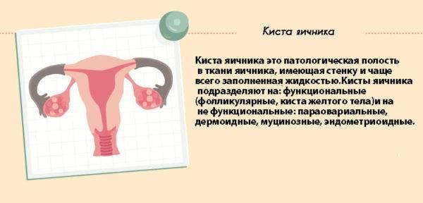 Что такое ретенционное образование левого или правого яичника