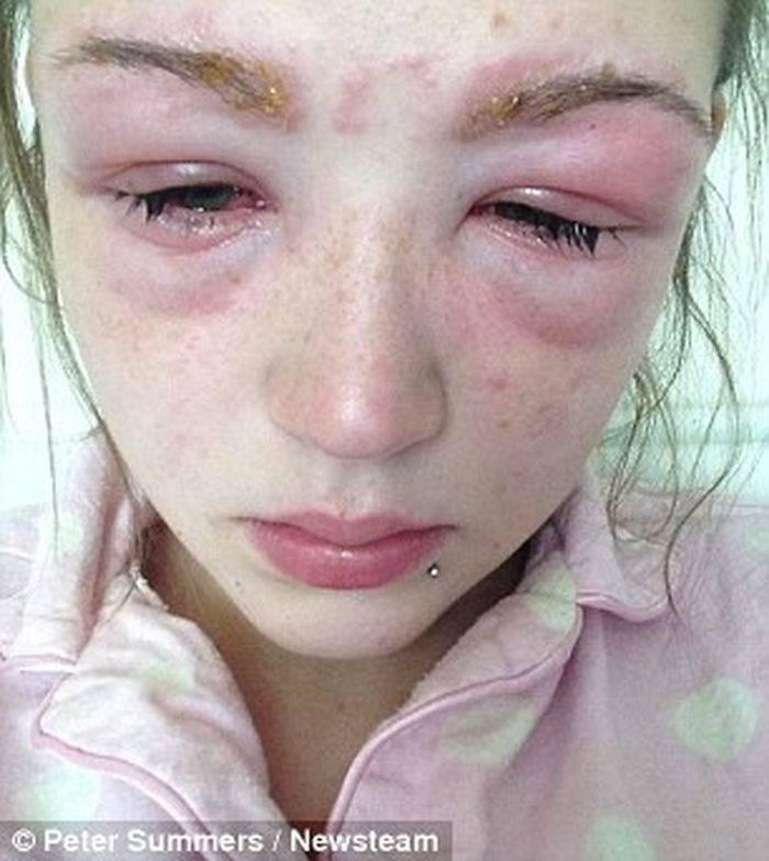 Аллергия на гиалуроновую кислоту – какие симптомы
