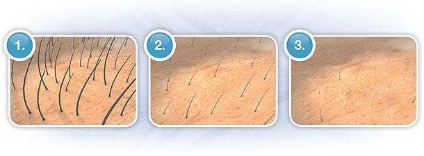 Точный расчет: сколько нужно прядей для наращивания волос?