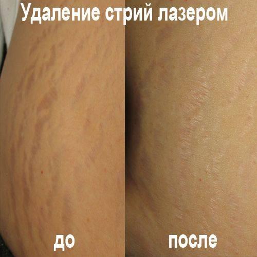 Рецепт гладкой кожи: пилинг от растяжек