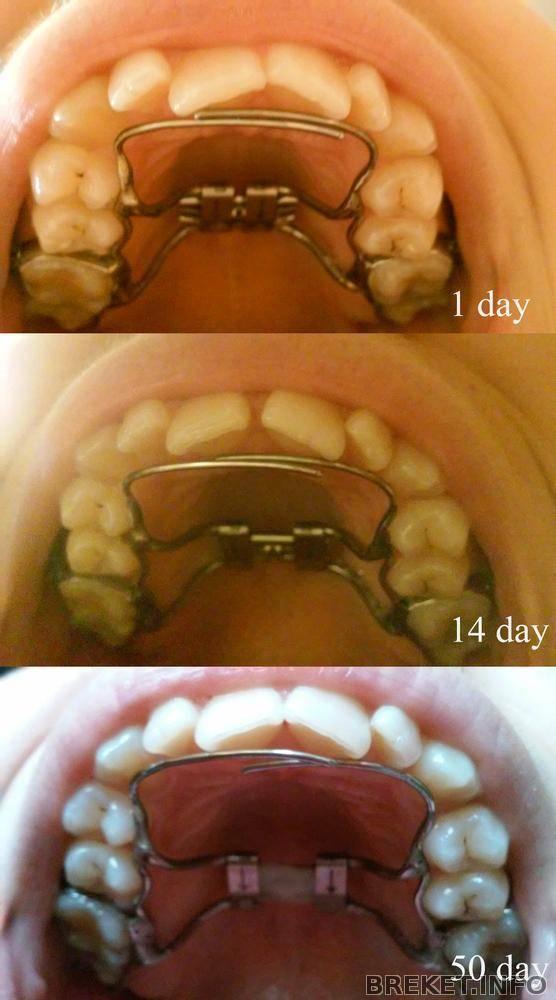Ортодонтические аппараты для детей и взрослых (съемные и несъемные конструкции)