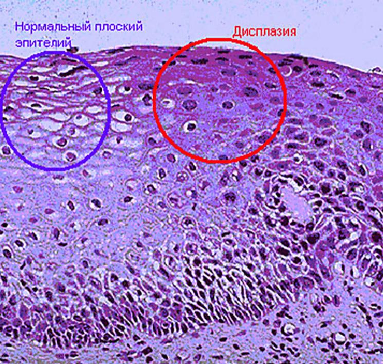 Эктопия шейки матки: причины, симптомы, диагностика, лечение, отличие от других патологий