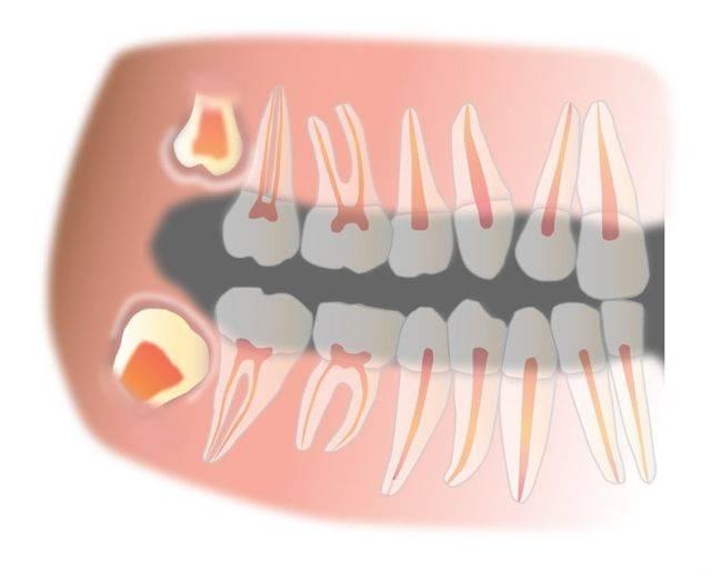 Сколько каналов в передних верхних зубах