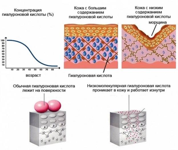 Низкомолекулярная гиалуроновая кислота — механизм действия и преимущества