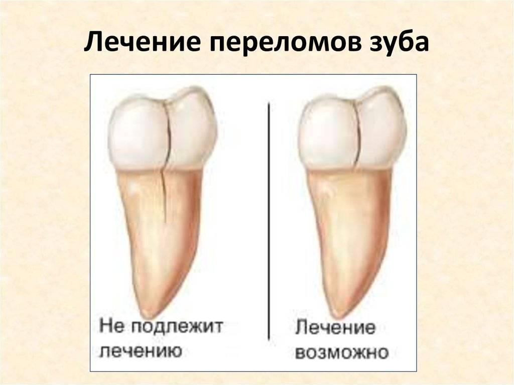 Перелом зуба