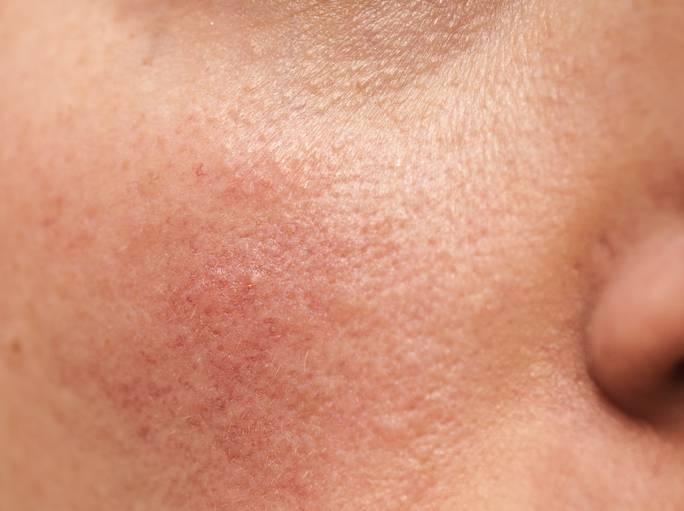 Розамет от розацеа, купероза на лице, дерматита. отзывы, как применять