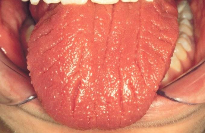 Как выявить и лечить десквамативный глоссит: терапия и профилактика заболевания