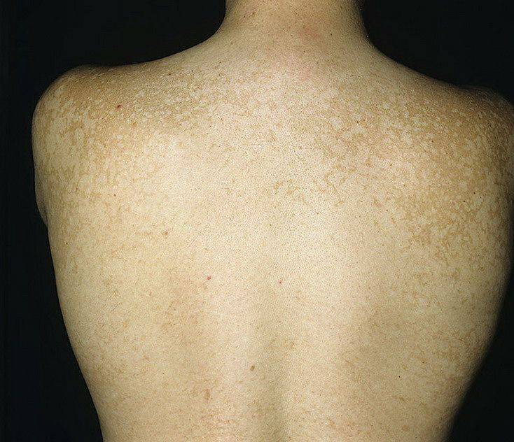 Отрубевидный лишай: фото, симптомы, лечение и причины