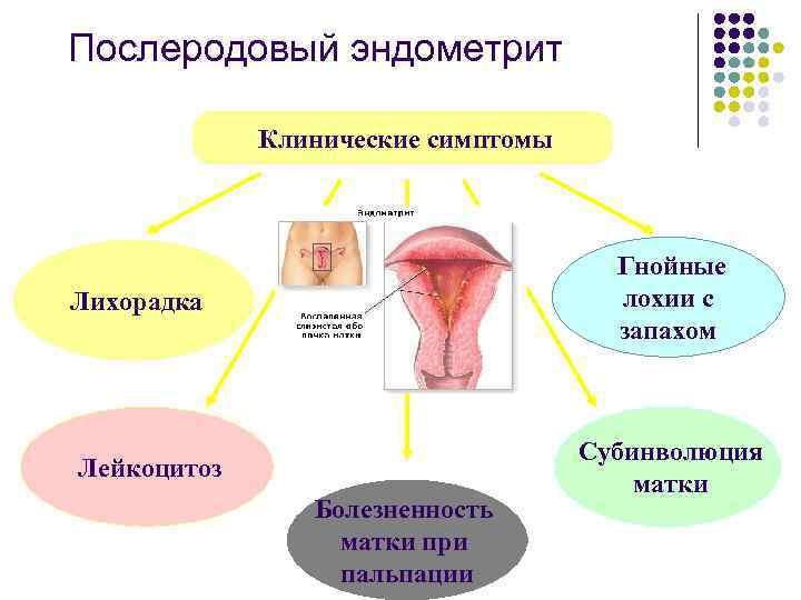 Роды без инфекций. эндометрит у молодых мам