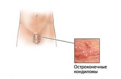 Белые пятна на головке у мужчин: фото, описание, удаление