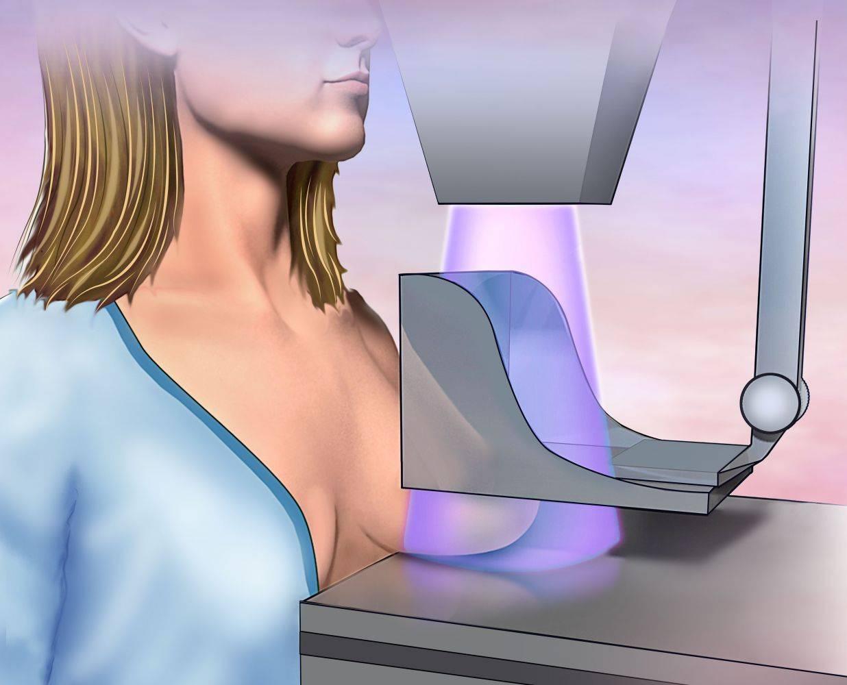 Дуктография молочной железы: показания и техника проведения