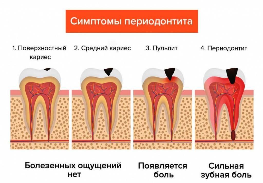 Диспансеризация в стоматологии