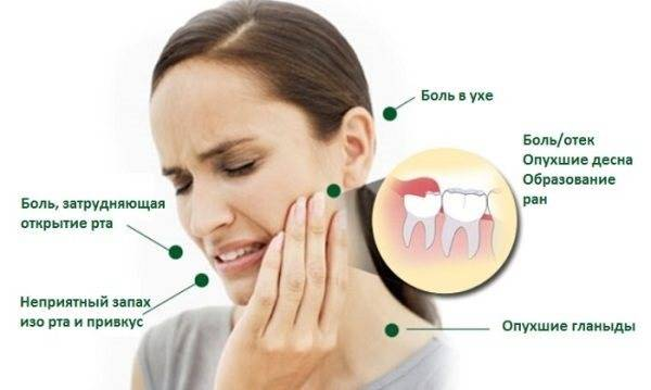 Чем снять зубную боль при беременности в домашних условиях — какие обезболивающие таблетки можно принять?