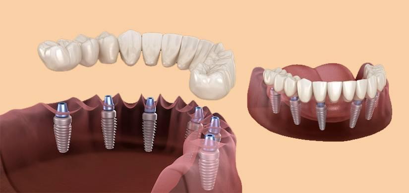 Все зубы сразу «под ключ»