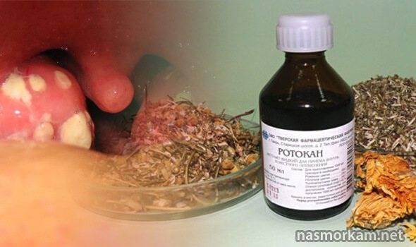 Можно ли лечить стоматит зеленкой и йодом?