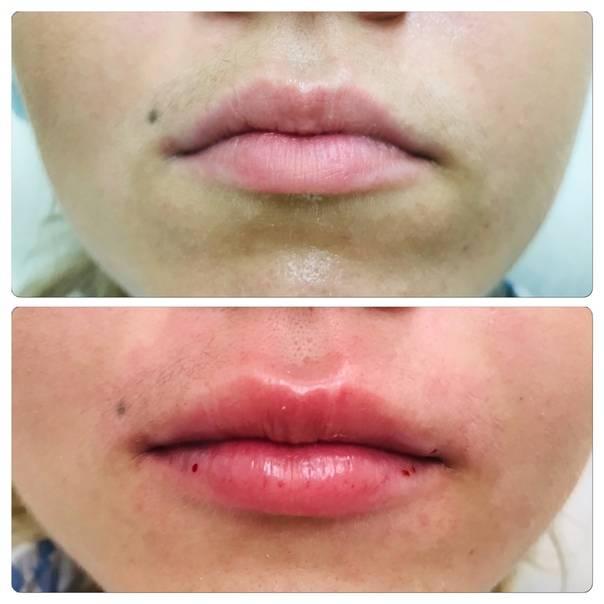 Контурная пластика губ: хит-парад самых чудовищных ошибок