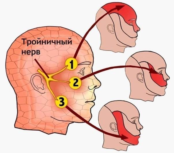 Невралгия тройничного лицевого нерва
