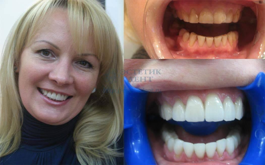 Можно ли ставить виниры на кривые зубы? фото до и после