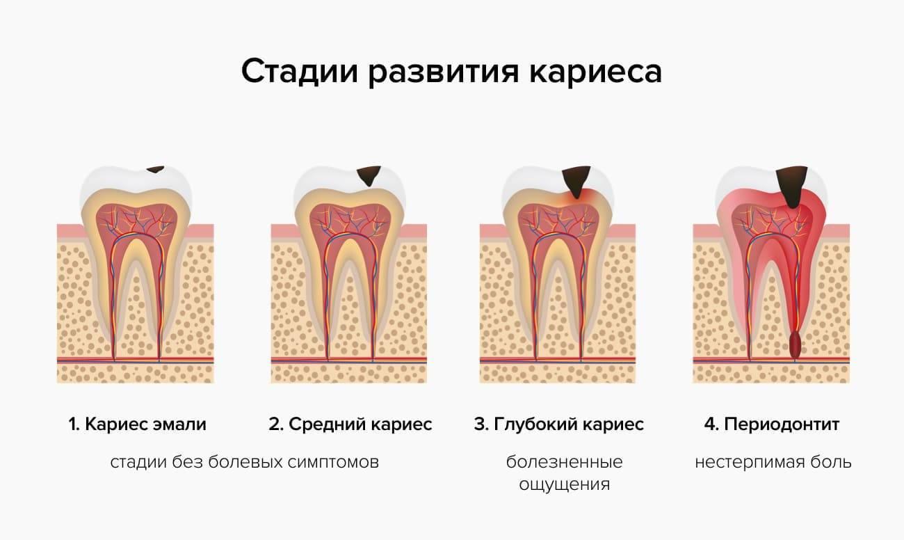 Средний кариес: симптомы, диагностика и лечение