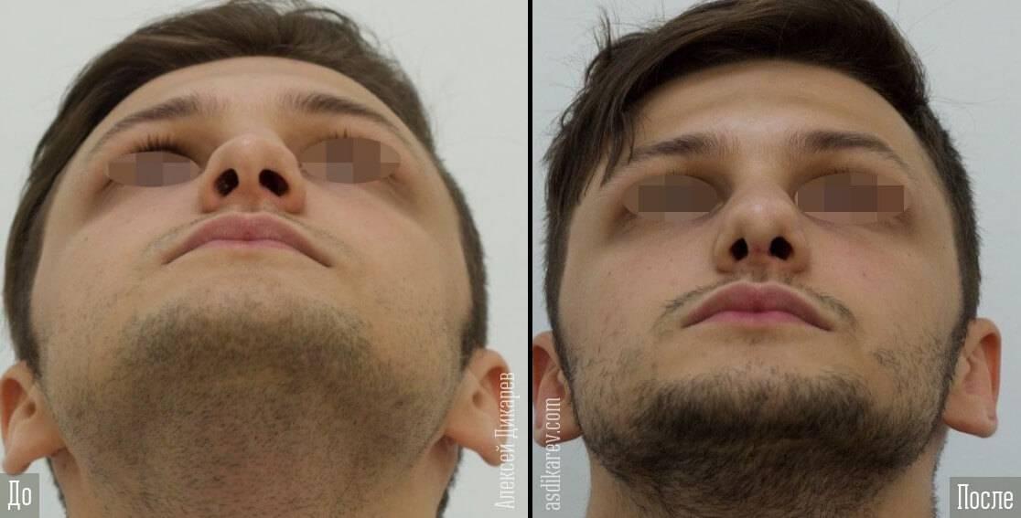 Исправление носовой перегородки лазером: преимущества и недостатки метода